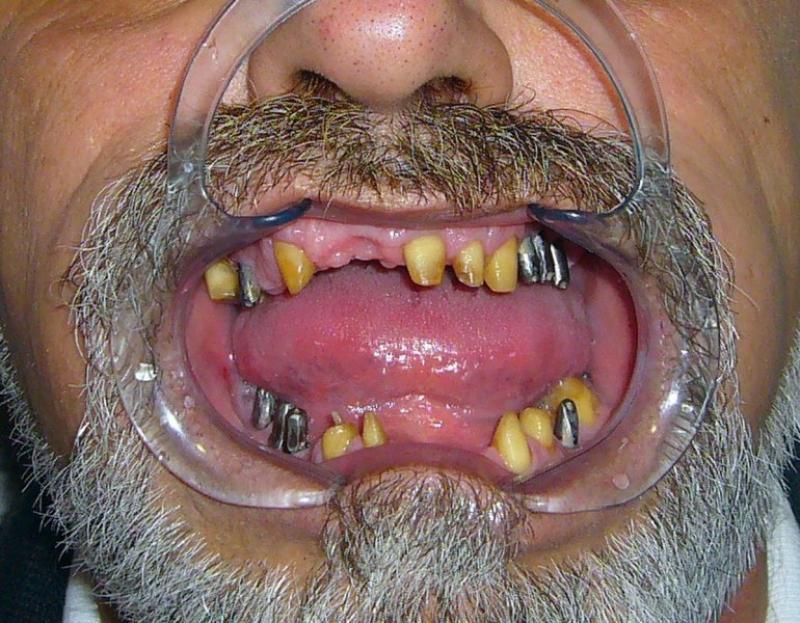 Izbruceni zubi