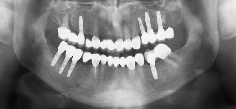 4 godine posle ugradnje - rentgen snimak