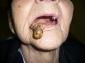 Karcinom donje usne